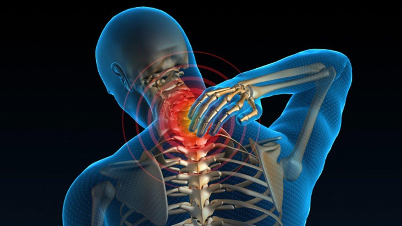 Радикулит: симптомы, профилактика и лечение
