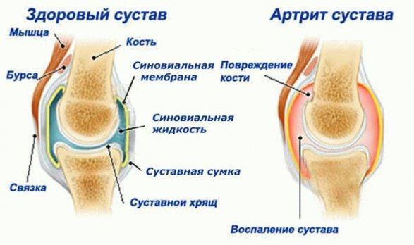 Ювенильный артрит причины симптомы и лечение ювенильного артрита