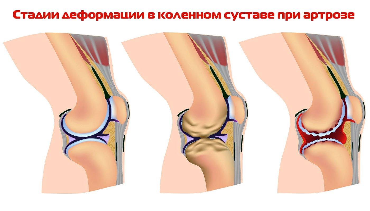 Криотерапия для суставов при артрозе