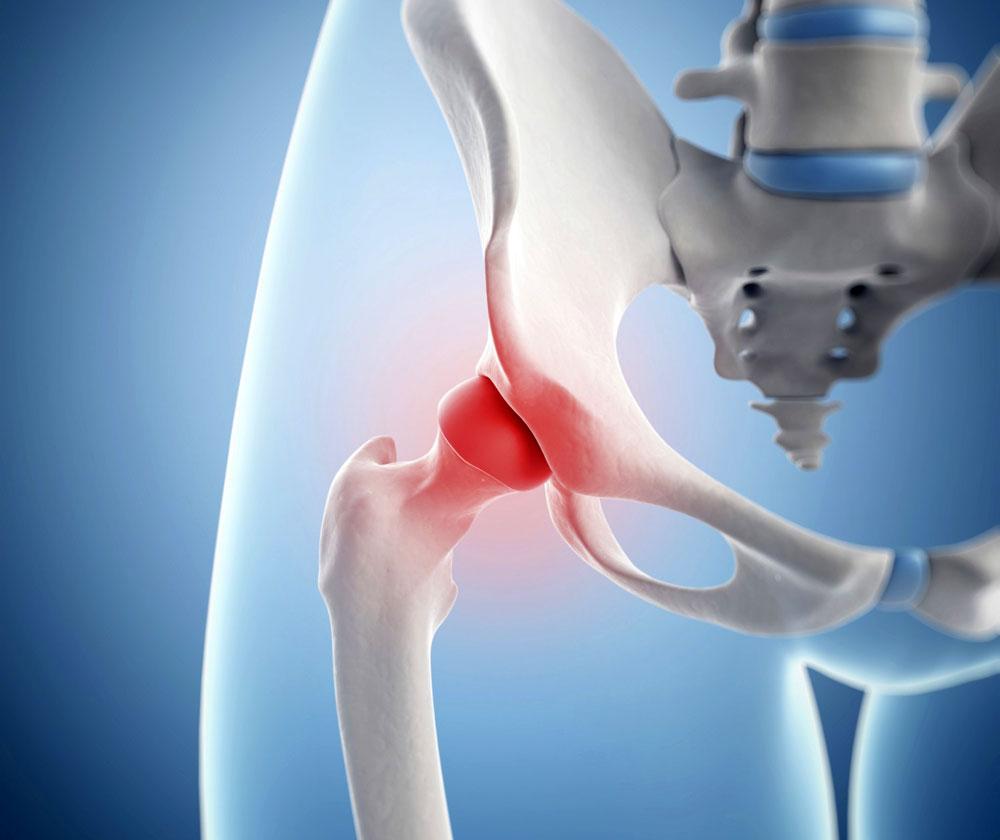 Бурсит тазобедренного сустава основные симптомы и методы лечения