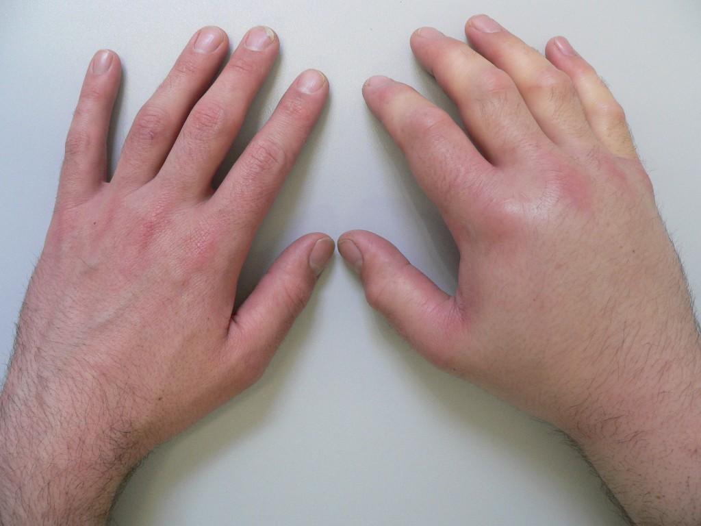 Синовиальные сумки сустава лечение воспаления оболочек