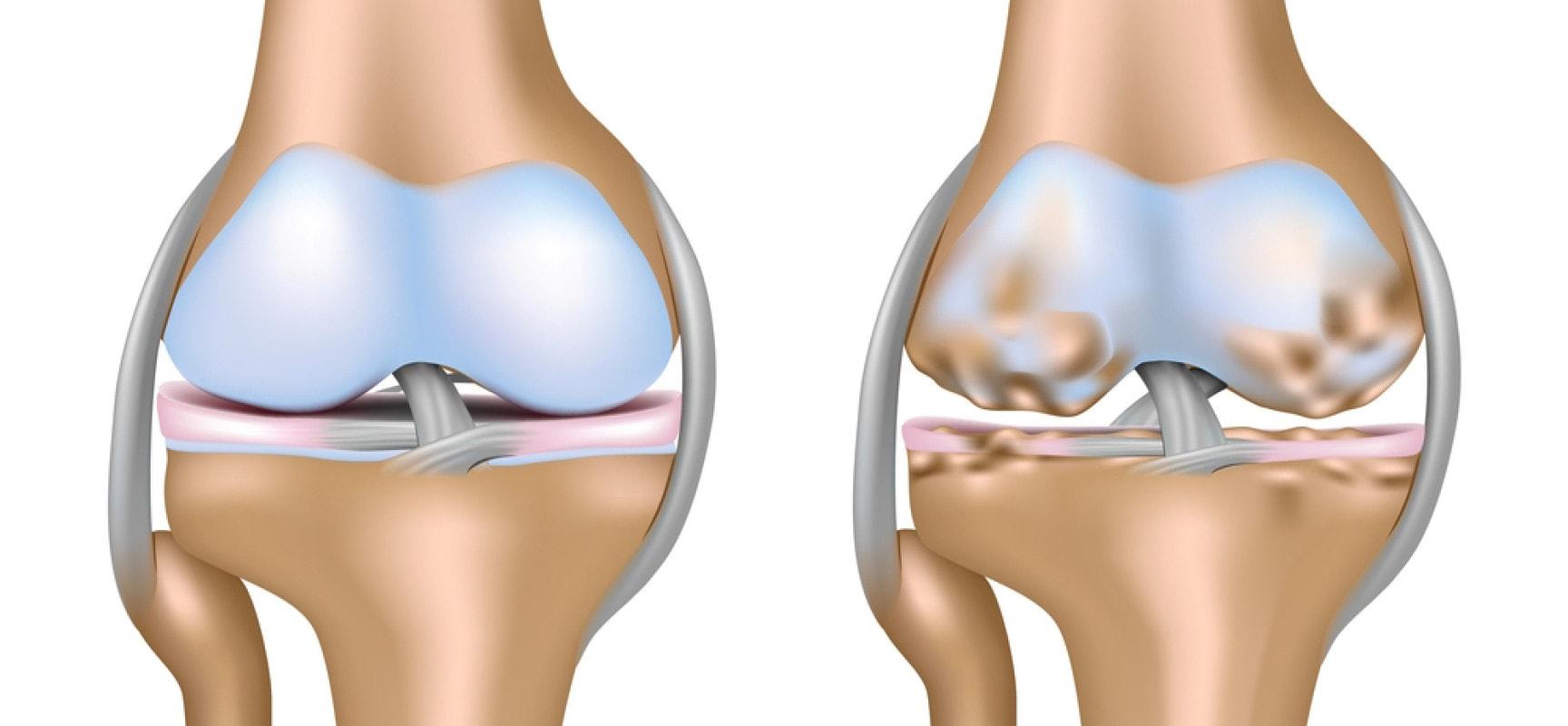 Двусторонний гонартроз коленных суставов 1, 2, 3 степени