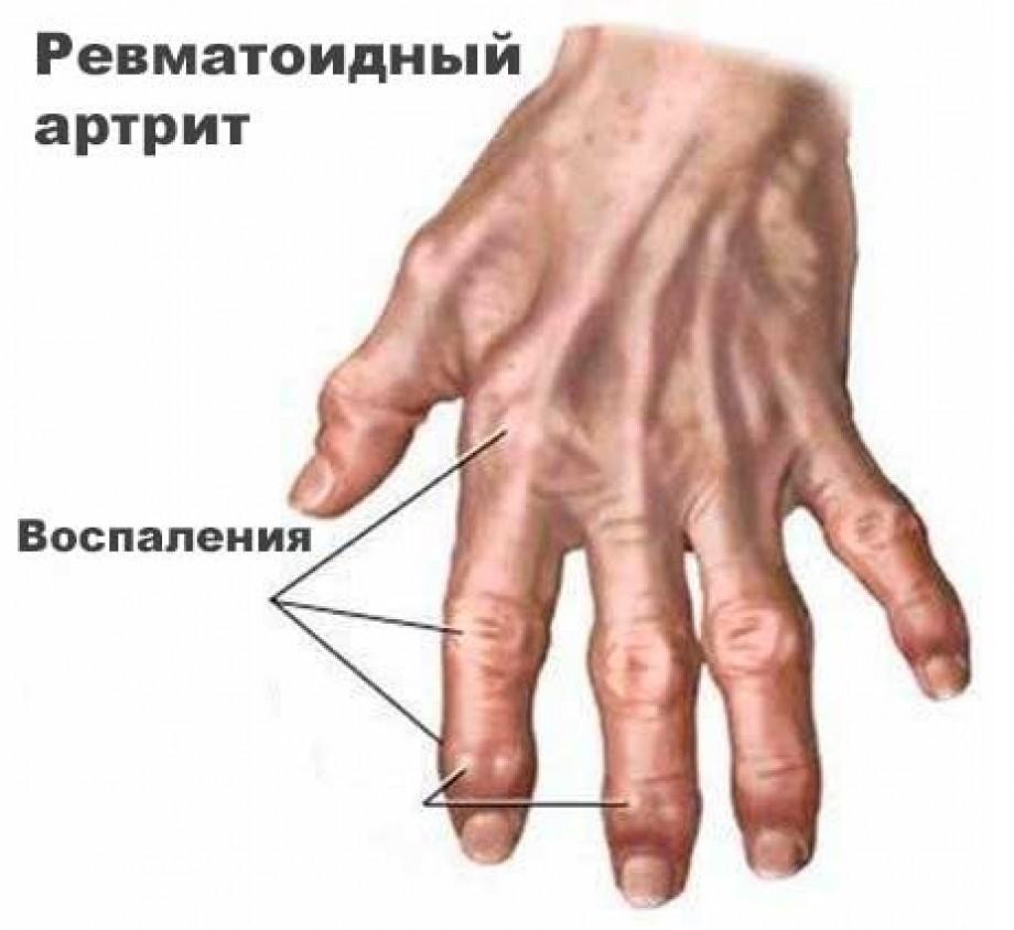 Инвалидность при ревматоидном артрите