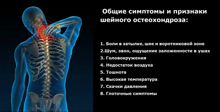Как избавиться от отка над ключицей при остеохондрозе и чем он опасен