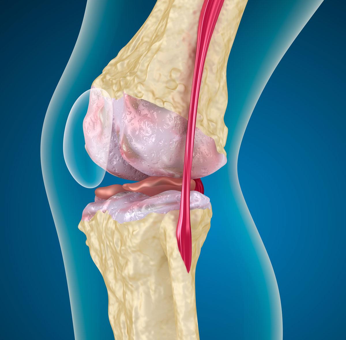 Пателлофеморальный артроз коленного сустава и его лечение
