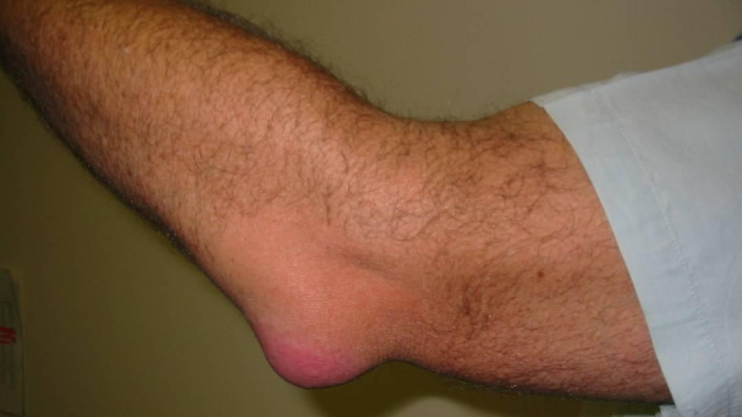 Бурсит локтевого сустава симптомы и лечение диагностика и профилактика