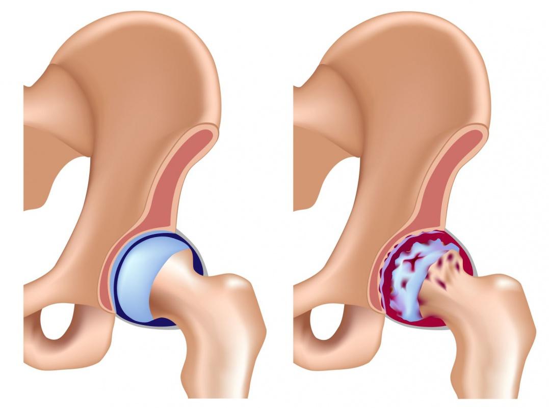 Асептический некроз головки тазобедренного сустава – патогенез, этиология и методы диагностики