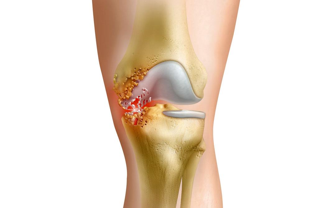 Симптомы и лечение гнойного артрита суставов