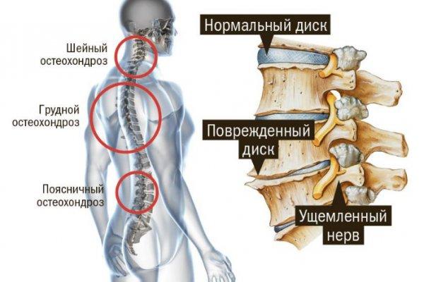 Сосудорасширяющие препараты при шейном остеохондрозе