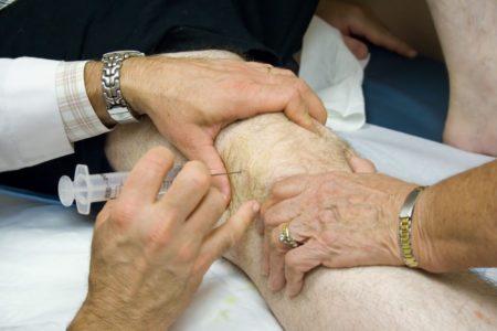 Блокады коленного сустава при деформирующем артрозе