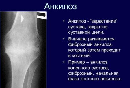 Изображение - Анкилоз тазобедренного сустава мкб 2-149-450x305