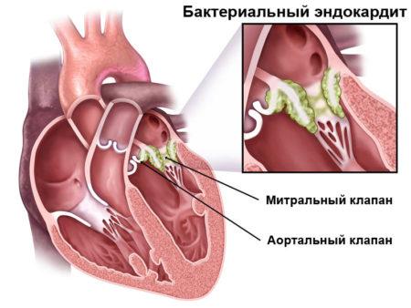 Что входит в анализ крови ревмопробы