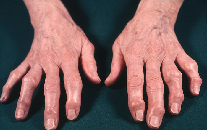 Антибиотики при воспалении суставов – как осуществляется механизм действия препаратов