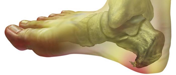 Лечение пяточной шпоры димексидом: применение и польза