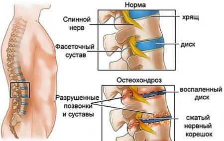 Диклофенак свечи при остеохондрозе шейного отдела