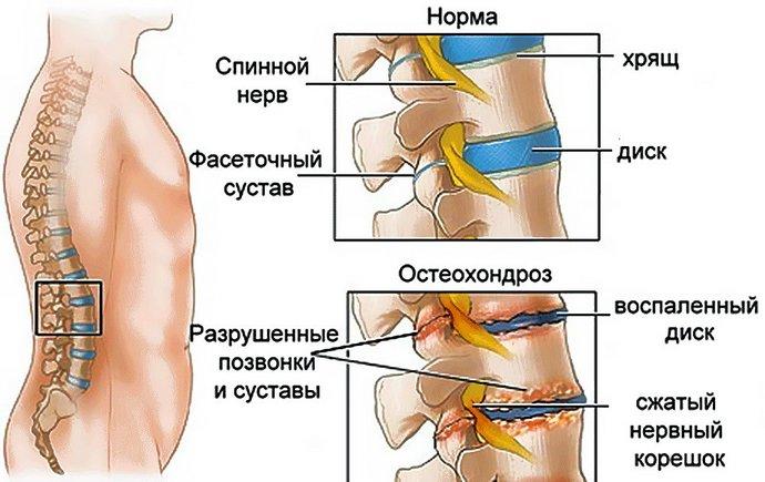 Диклофенак при остеохондрозе поясничного отдела