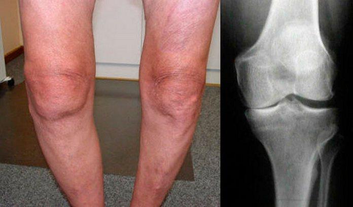 Остеоартроз коленного сустава 2 степени симптоматика причины и лечение