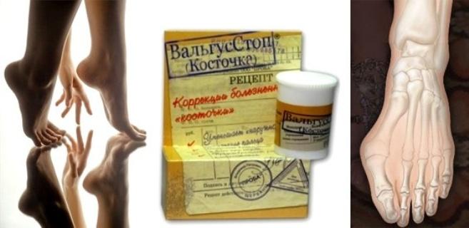 Мазь ValgusStop от косточки на ноге: инструкция по применению, цена, отзывы, описание