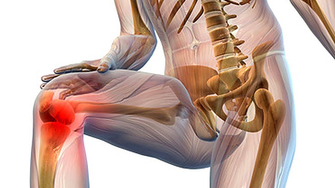Диагностика и лечение эпикондилита коленного сустава