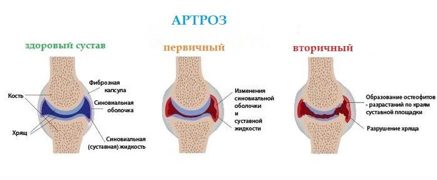 Артроз голеностопного сустава лечение симптоматика диагностика