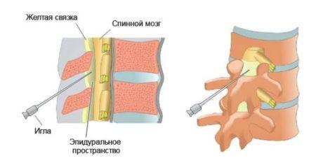 Паравертебральная блокада пояснично-крестцового отдела: показания, механизм действия