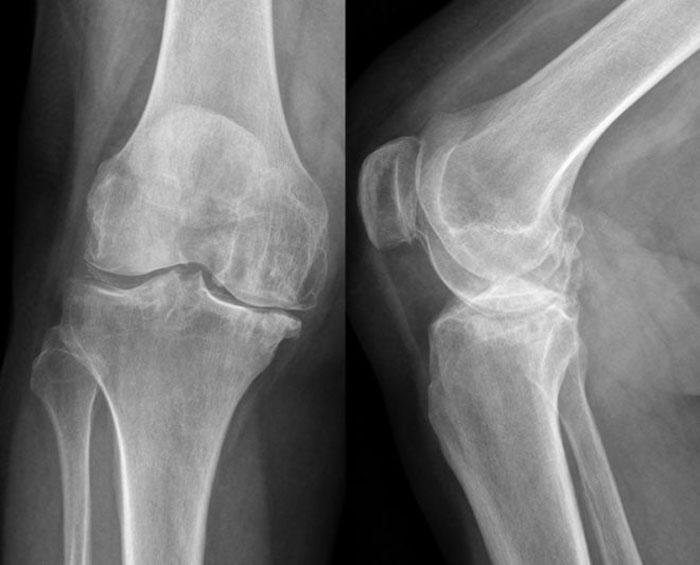 Причины асептического некроза коленного сустава