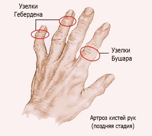 Остеоартроз кистей рук: лечение деформирующего полиостеоартроза суставов пальцев рук 1, 2 и 3 степени