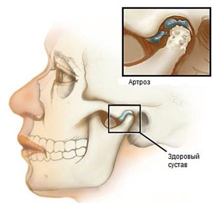 Артроз височно челюстного сустава