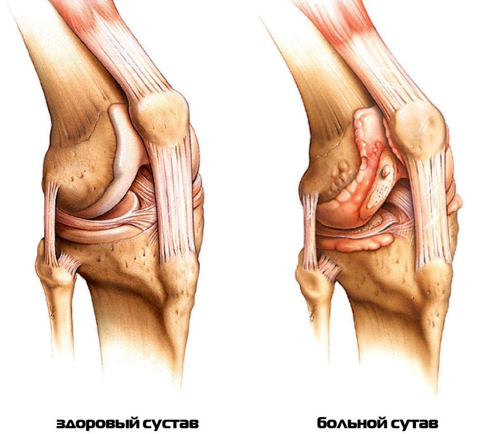 Ревматоидный артрит пальцев рук первые симптомы методы лечения