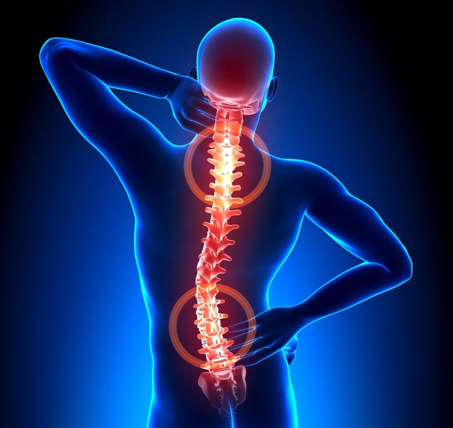 Остеохондроз плечевого сустава – симптомы и лечение болезни, причины развития, профилактические мероприятия