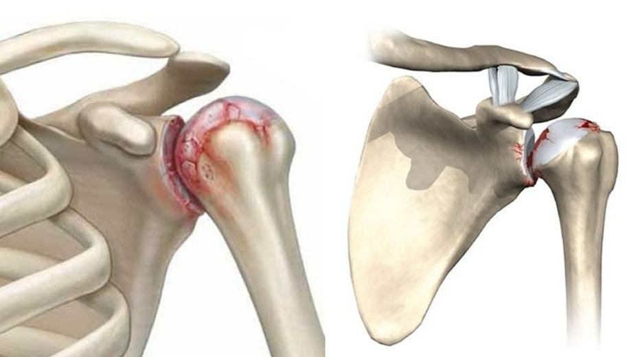 Физические упражнения при остеоартрозе плечевого сустава