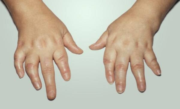 Ревматоидный артрит у детей – причины развития патологии