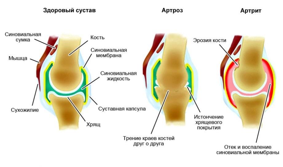 Капуста для лечения колена