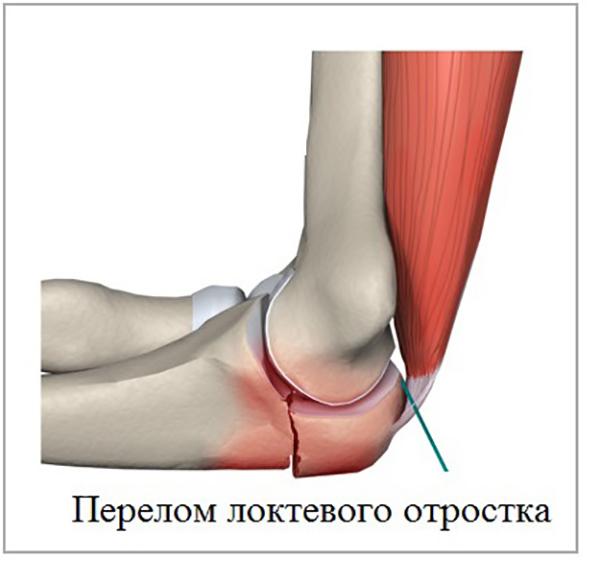 Перелом локтевого сустава симптомы виды и методы лечения