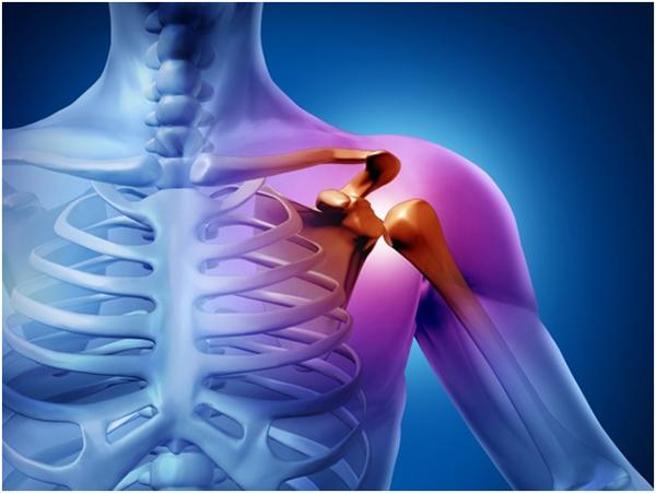 Перелом плечевого сустава со смещением и без: симптомы и лечение травмы