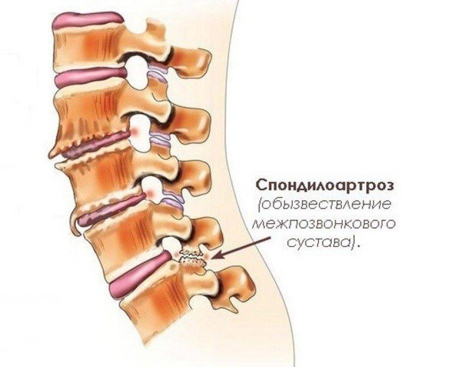 Спондилоартроз - что это такое причины возникновения симптомы стадии лечение и профилактика