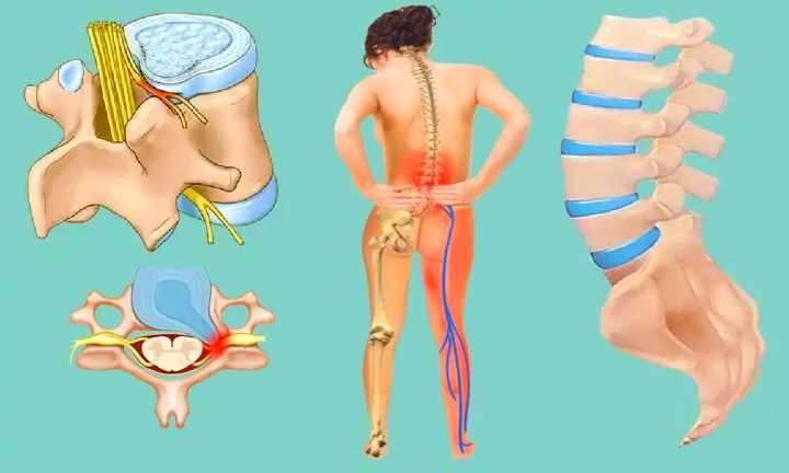 Спондилолистез пояснично-крестцового отдела позвоночника: лечение