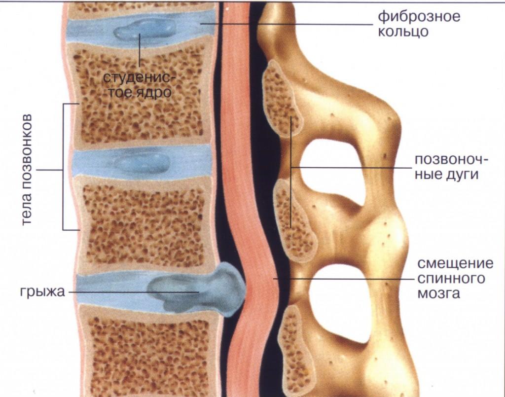 Симптомы и методы лечения секвестрированной грыжи позвоночника
