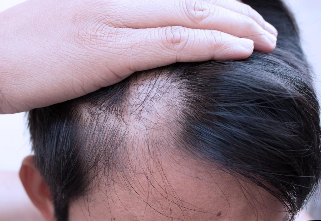 Выпадение волос от шейного остеохондроза Боли при шейном остеохондрозе