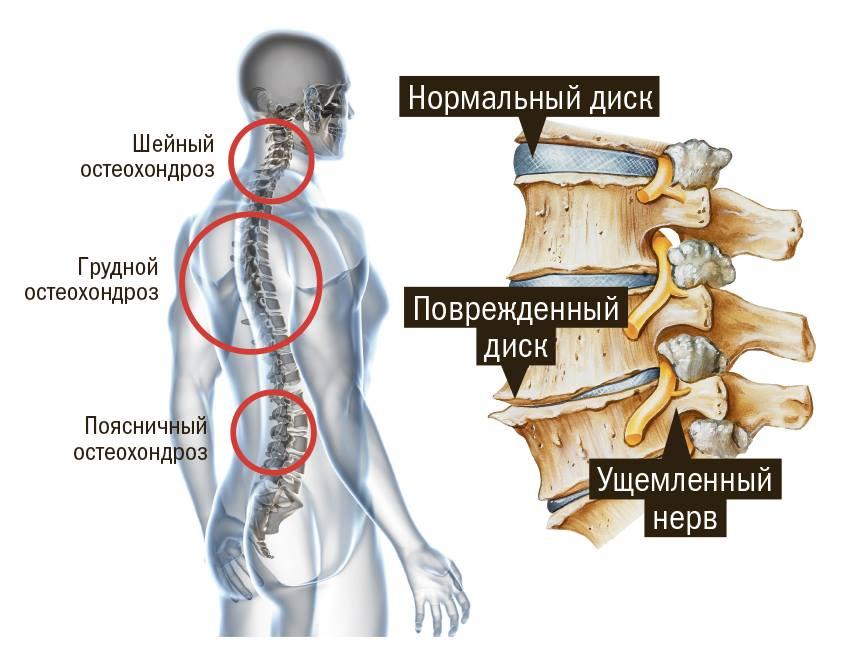 Остеохондроз и остеопороз отличия - Все про суставы