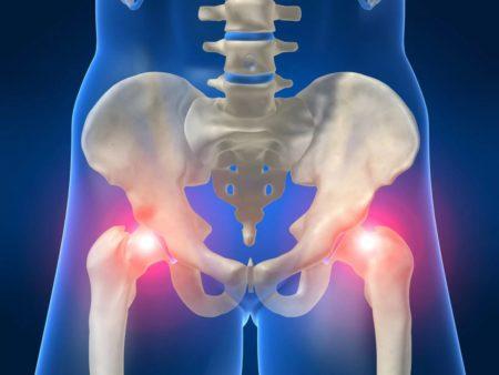 Синовит тазобедренного сустава лечение у детей