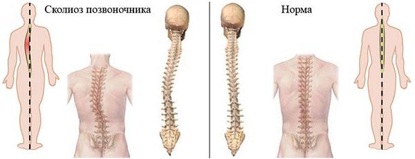 Сколиоз 1 степени - симптомы, диагностика и методы лечения
