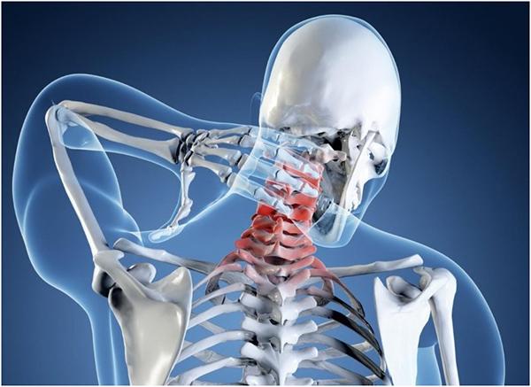 Лечение и профилактика искривления шейного отдела позвоночника
