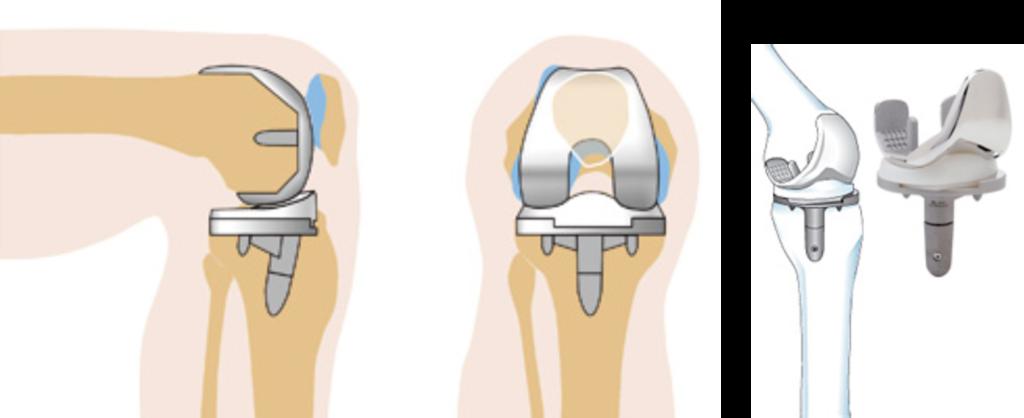 Осложнения и восстановление после операции по эндопротезированию коленного сустава