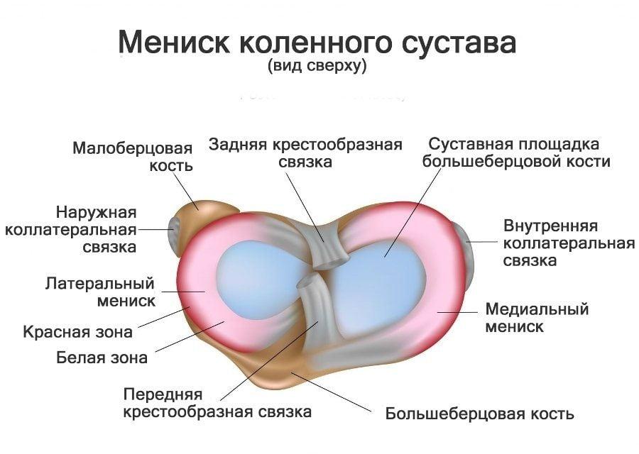 Менископатия коленного сустава симптомы и лечение