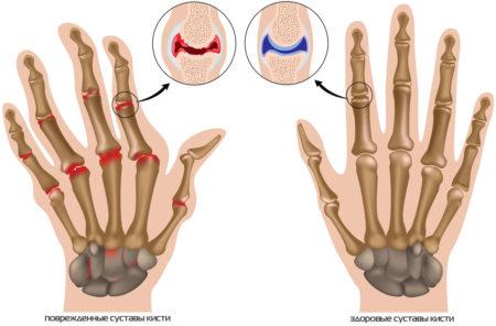 Гимнастика для пальцев рук при артрозе: ежедневные упражнения