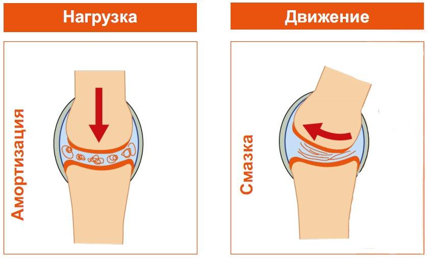 Уколы гиалуроновой кислоты при артрозе коленного сустава
