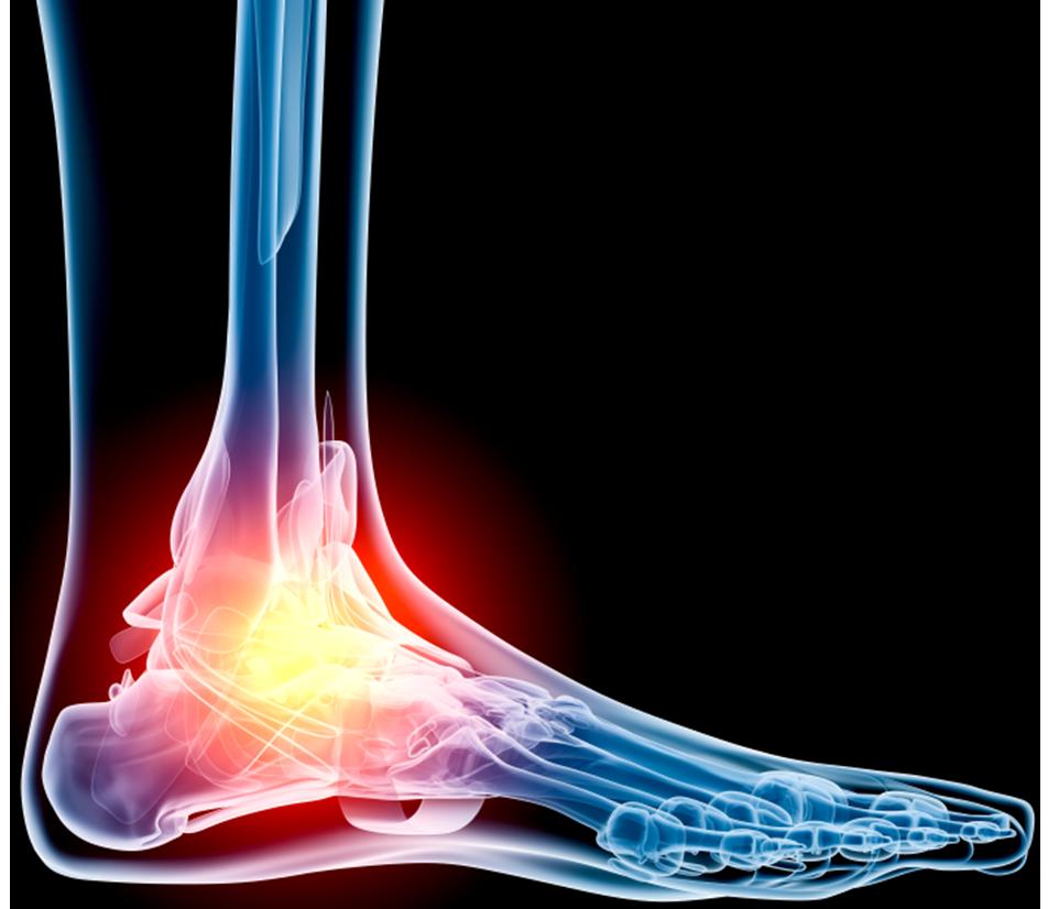 Тендовагинит голеностопного сустава — симптомы и лечение