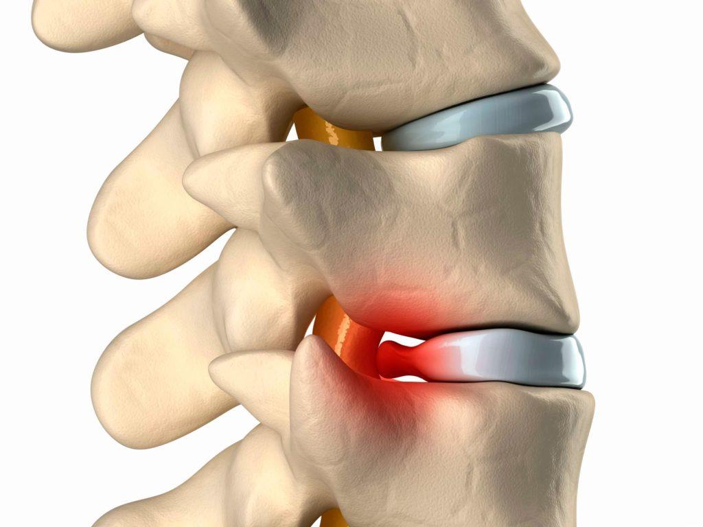 Как болит спина при грыже позвоночника