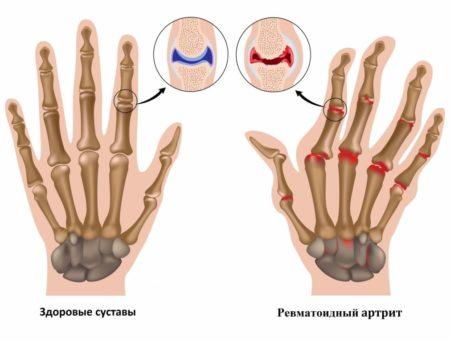Голодание для лечения ревматоидного артрита